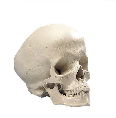 Cranio idrocefalo A29/2