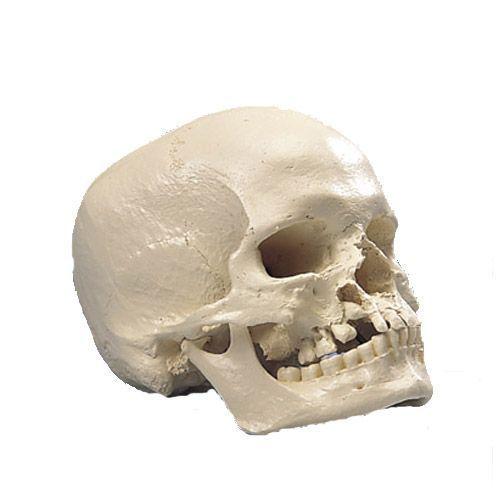Modello di Cranio microcefalo A29/1