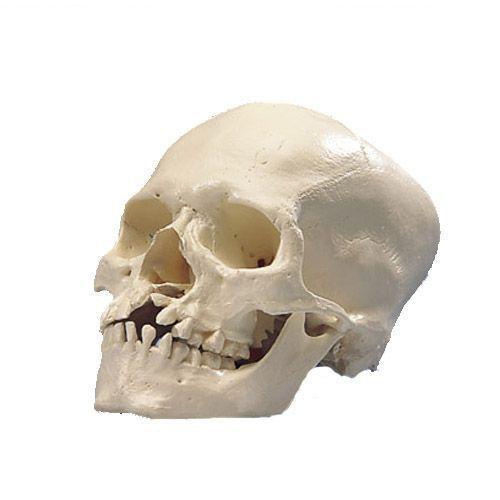 Cranio con gnatoschisi e palatoschisi A29/3