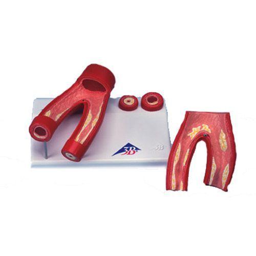 Modello di arteriosclerosi, con sezione delle arterie G40