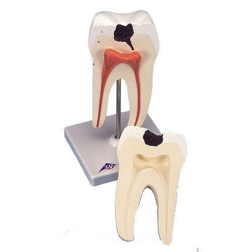 Dente molare inferiore a due radici con carie, in 2 parti D10/4