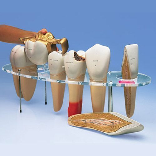 Set di Protesi dentaria Ingrandita W42529