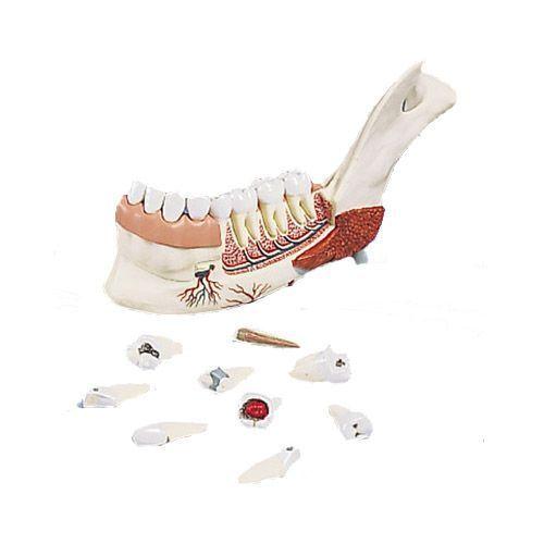 Modello di Metà mandibola con 8 denti cariati, in 19 parti VE290