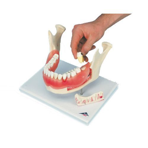 Patologie dentali, ingrandito 2 volte, 21 pezzi D26