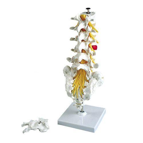 Modello di Colonna vertebrale lombare con ernia del disco dorsolaterale A76/5