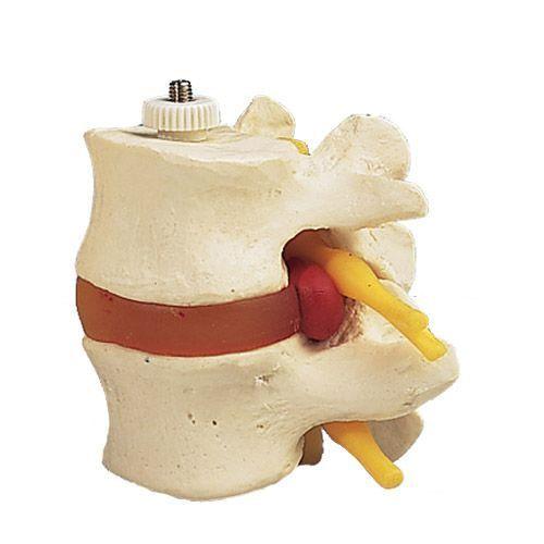 Modello di 2 vertebre lombari con ernia del disco, montaggio elastico A76/9