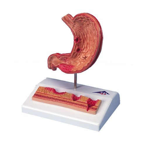 Modello di stomaco con ulcere gastriche K17
