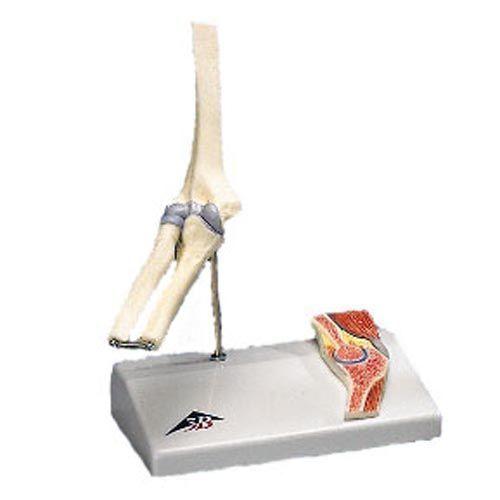 Mini articolazione del gomito con sezione trasversale, su base A87/1