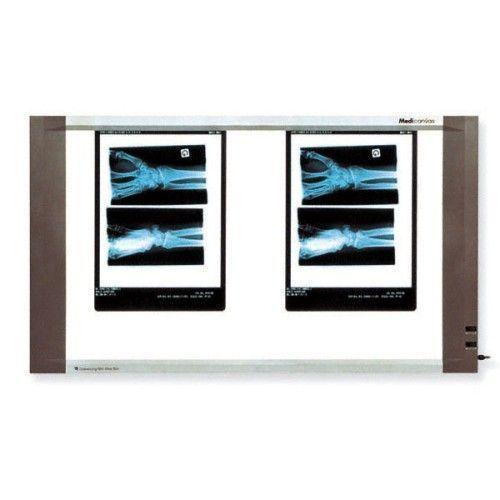 Negatoscopio con doppio schermo 45W