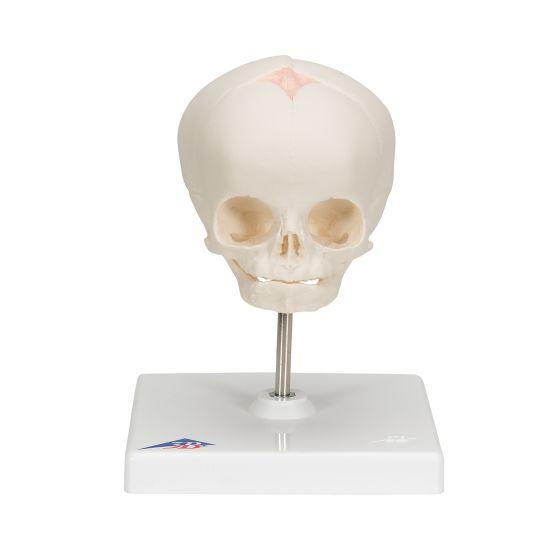 Cranio di feto, su cavalletto A26