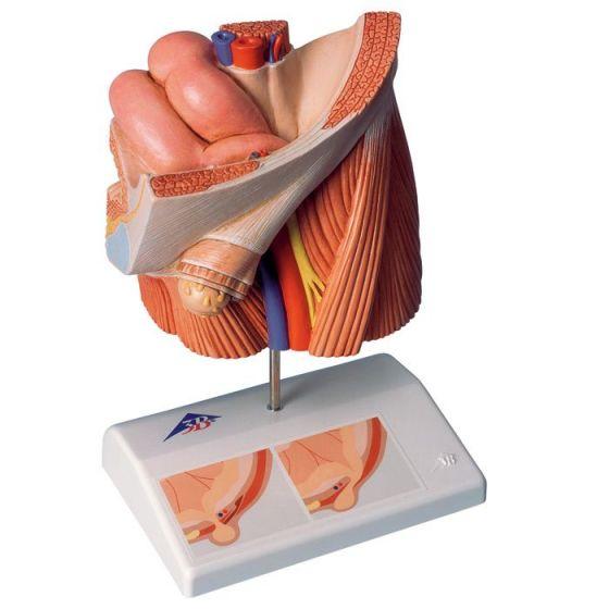 Modello di ernia inguinale H13