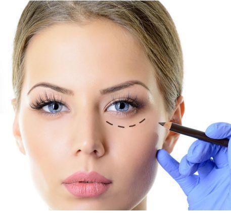 Dispositivi per la rimozione dei capelli laser per